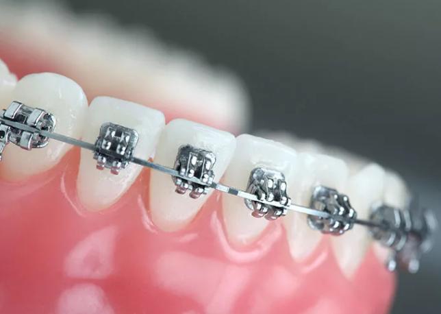 苏州牙齿矫正价格表