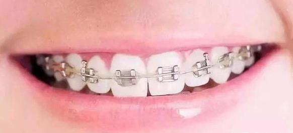 牙齿矫正的价格是多少