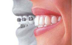 在北京做牙齿矫正多少钱?牙齿矫正价格的影响因素