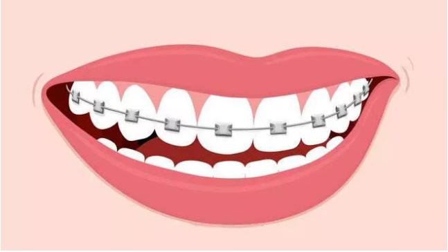 成年人在北京做牙齿矫正多少钱