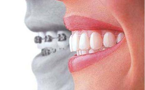 在北京做牙齿矫正多少钱