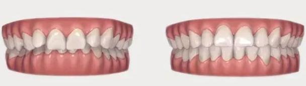 北京哪里做牙齿矫正比较好
