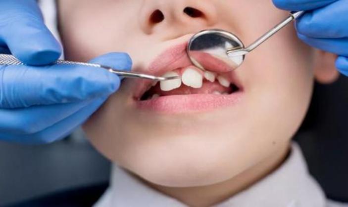儿童牙齿矫正器多少钱