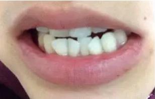 牙齿矫正的费用是多少