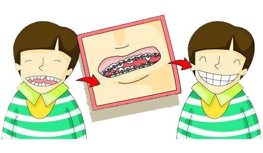 北京儿童牙齿矫正费用大概多少