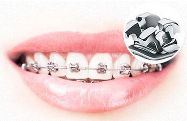 广州牙齿矫正自锁牙套多少钱