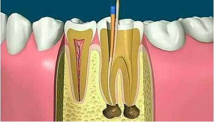 牙齿根管治疗的费用高吗