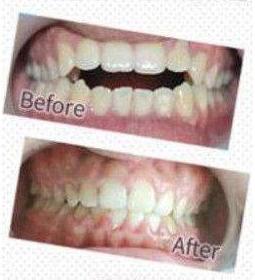 牙齿矫正为什么要那么久