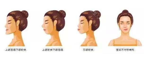 正畸和正颌有什么区别