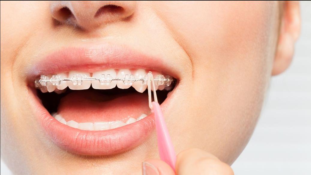 整牙拔掉八颗牙后空隙怎么收