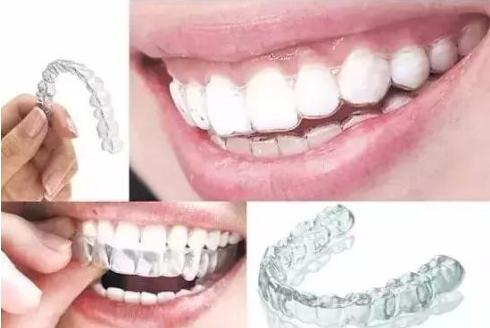 哪些人不适合隐形牙套