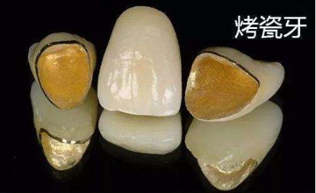 什么是烤瓷牙