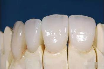 全瓷牙使用寿命的影响因素
