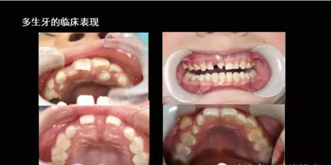 最恐怖的多生牙图片