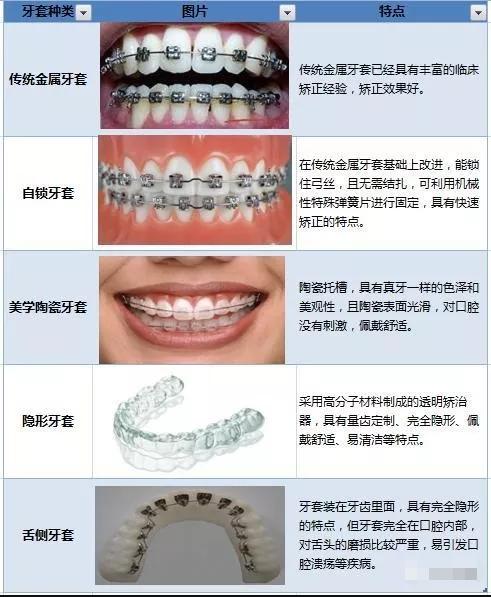 请问戴牙套的价格大致是多少