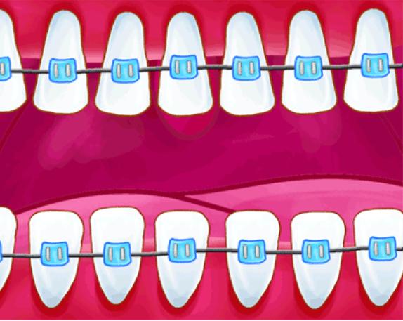 戴牙套分几个阶段