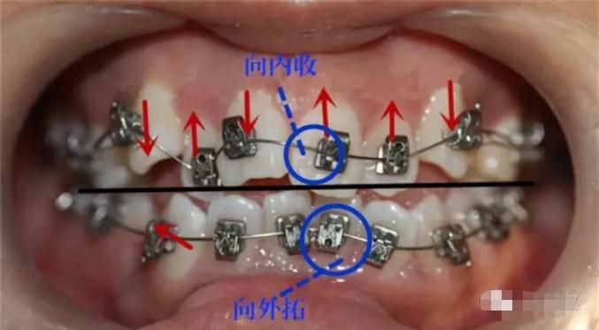 32岁矫正牙齿最快要多久时间