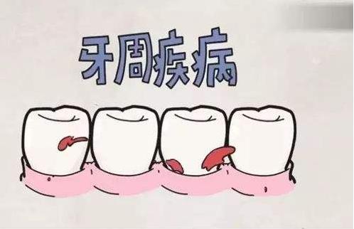 哪些人不适宜做牙齿矫正