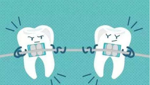 什么样的人不可以整牙