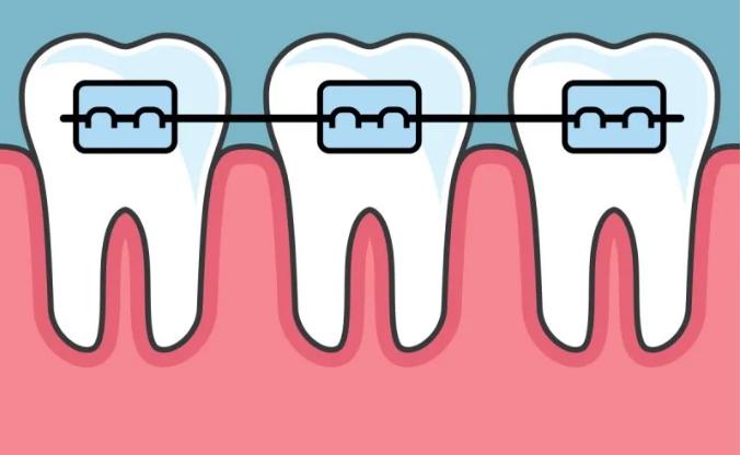 牙齿矫正的6大谣言