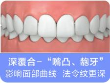 什么样的牙齿需要矫正