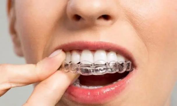 牙齿整形为什么会反弹