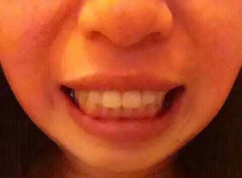 记录一个30多岁女人牙齿矫正的经历