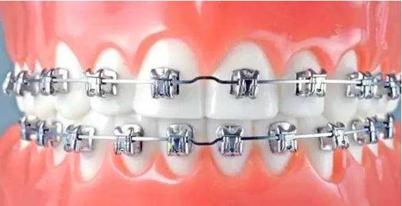 三十多岁牙齿矫正的经历