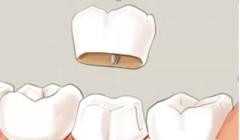一个牙套价格一般是多少?做一个烤瓷牙套需要多少钱!
