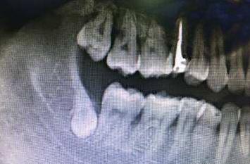 上海拔智齿可以医保报销吗