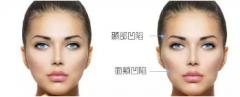 你听过牙套脸吗?如何避免牙套脸?
