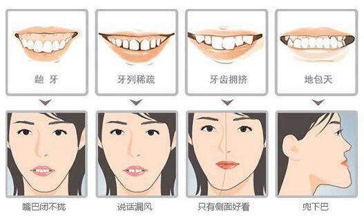 40多还能矫正牙齿吗