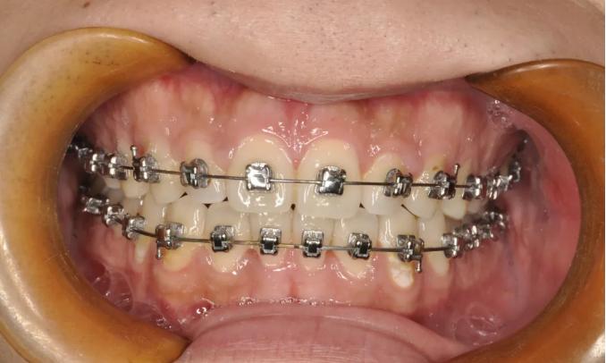 牙齿矫正选择什么医院