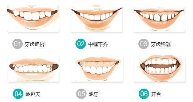 武汉牙齿矫正哪家口腔医院比较好