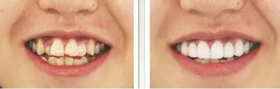 牙齿矫正前后脸型的改变
