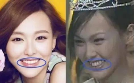 唐嫣牙齿矫正前后对比照