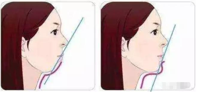 地包天牙齿矫正前后脸对比照