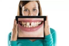 整容不如整牙 牙齿对脸型影响大