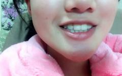 天包地牙齿矫正前后脸对比照,这变化你爱了吗?