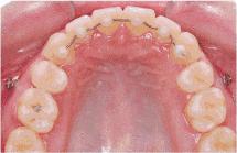 牙齿矫正的年龄最晚什么时候
