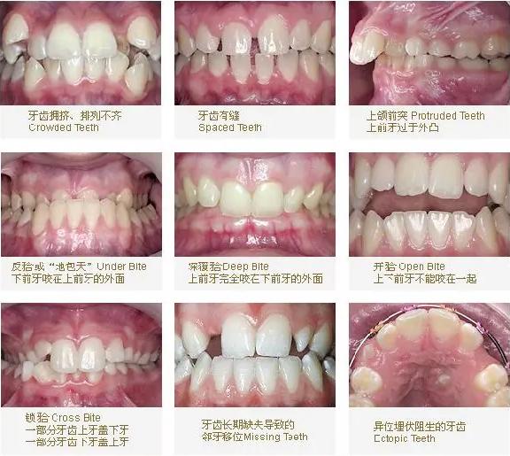 为什么会牙齿畸形?