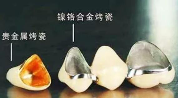 烤瓷牙边缘变黑的三种原因