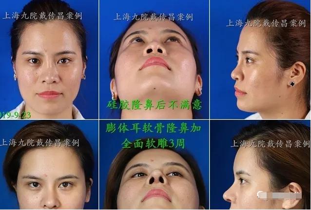 上海九院戴传昌做隆鼻多少钱