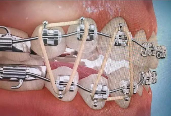 整牙挂皮筋什么作用