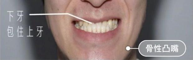 骨性凸嘴和齿性凸嘴区别