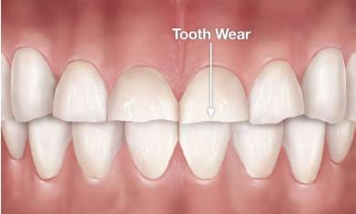 牙齿深覆合会越来越严重么