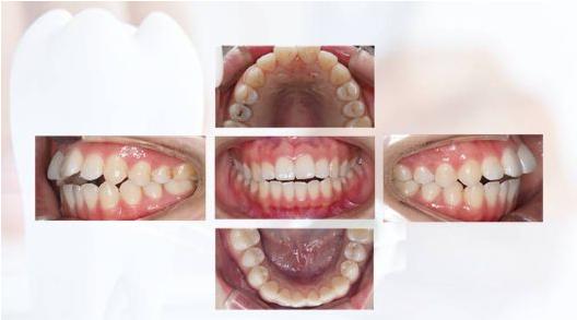 40多岁还能进行牙齿矫正吗