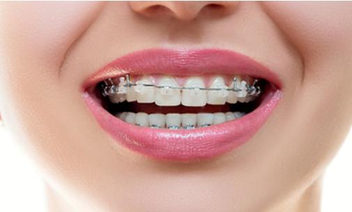 成年人矫正牙齿要考虑时间和金钱