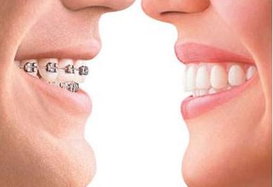 成年人矫正牙齿害怕副作用