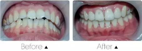 牙齿有必要矫正吗